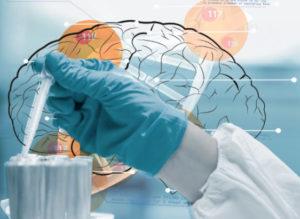 brain-injury-bio-identical-hormone
